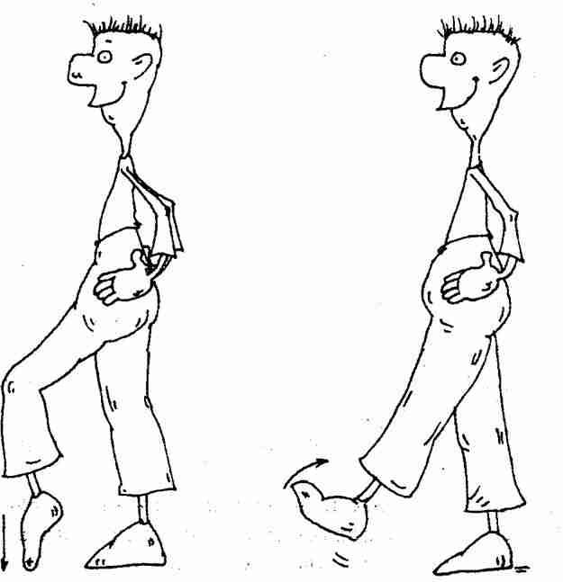 Области берите ботинки которые сгибаются голеностопном суставе приседании стремитесь доро тройной артродез дтаранного сустава техника выполнения