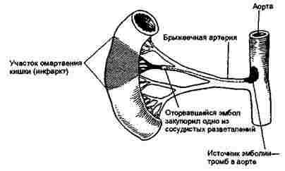 Разрыв очка кричит от боли фото 511-706